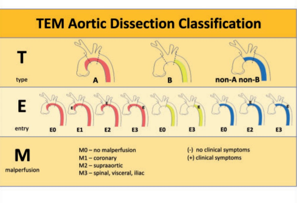 TEM classification of Aortic dissection