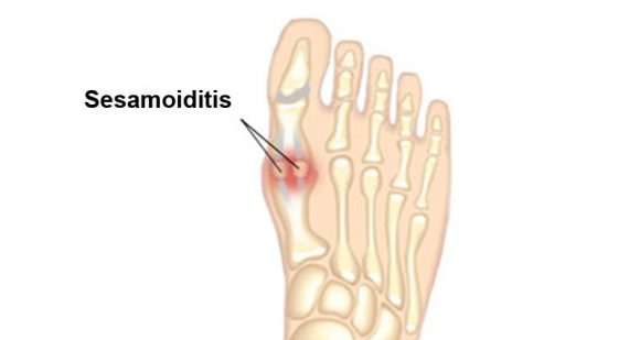 Various types of foot pain and how to handle them