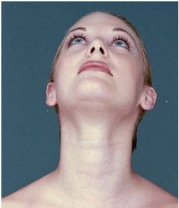 How To Reduce Double Chin fast