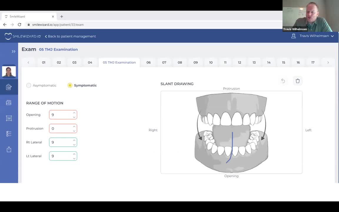 Webinar: Introducing Smile Wizard Treatment Planning Software