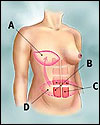 TRAM Flap Breast Reconstruction – Preparation