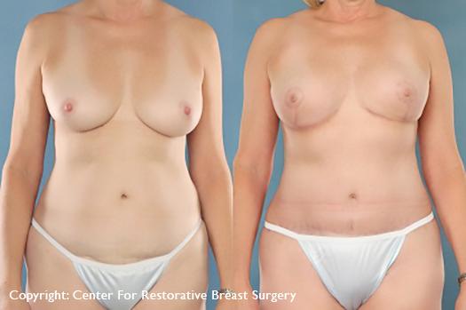 nipple sparing 1