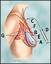 Filled tissue expander
