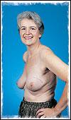 Jill—Lumpectomy