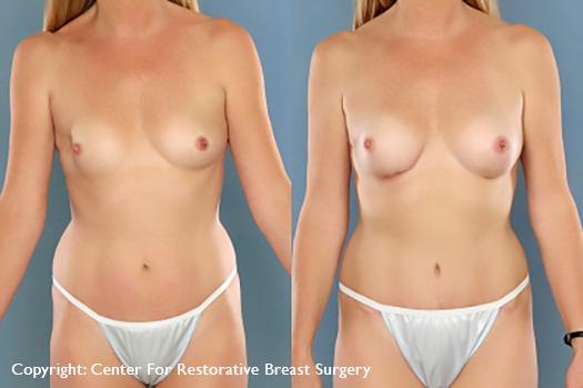 lumpectomy recon 2