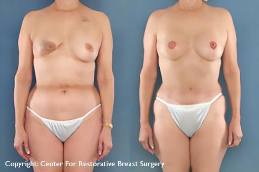 lumpectomy recon
