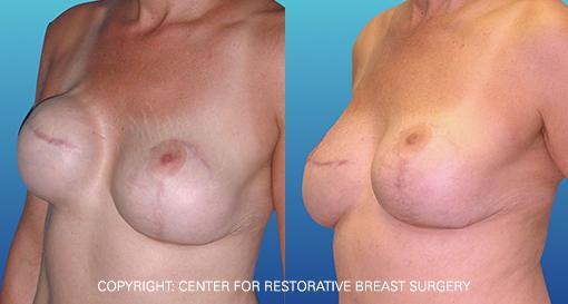 Capsular Contracture 1 - Corrective Breast Reconstruction
