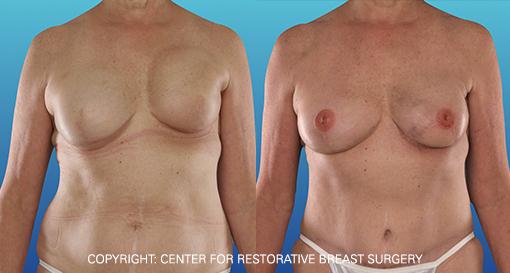 Capsular Contracture 2 - Corrective Breast Reconstruction