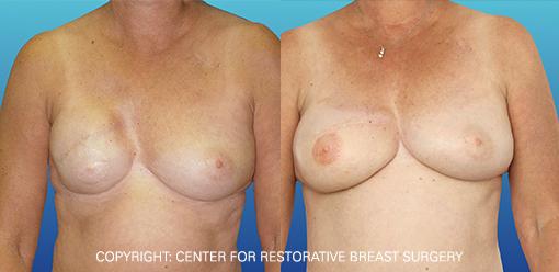 Capsular Contracture 3 - Corrective Breast Reconstruction