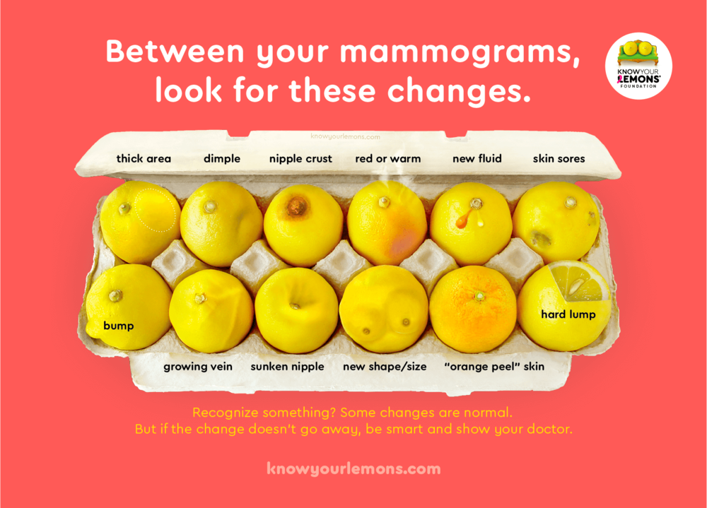knowyourlemons-12signsofbreastcancer.png