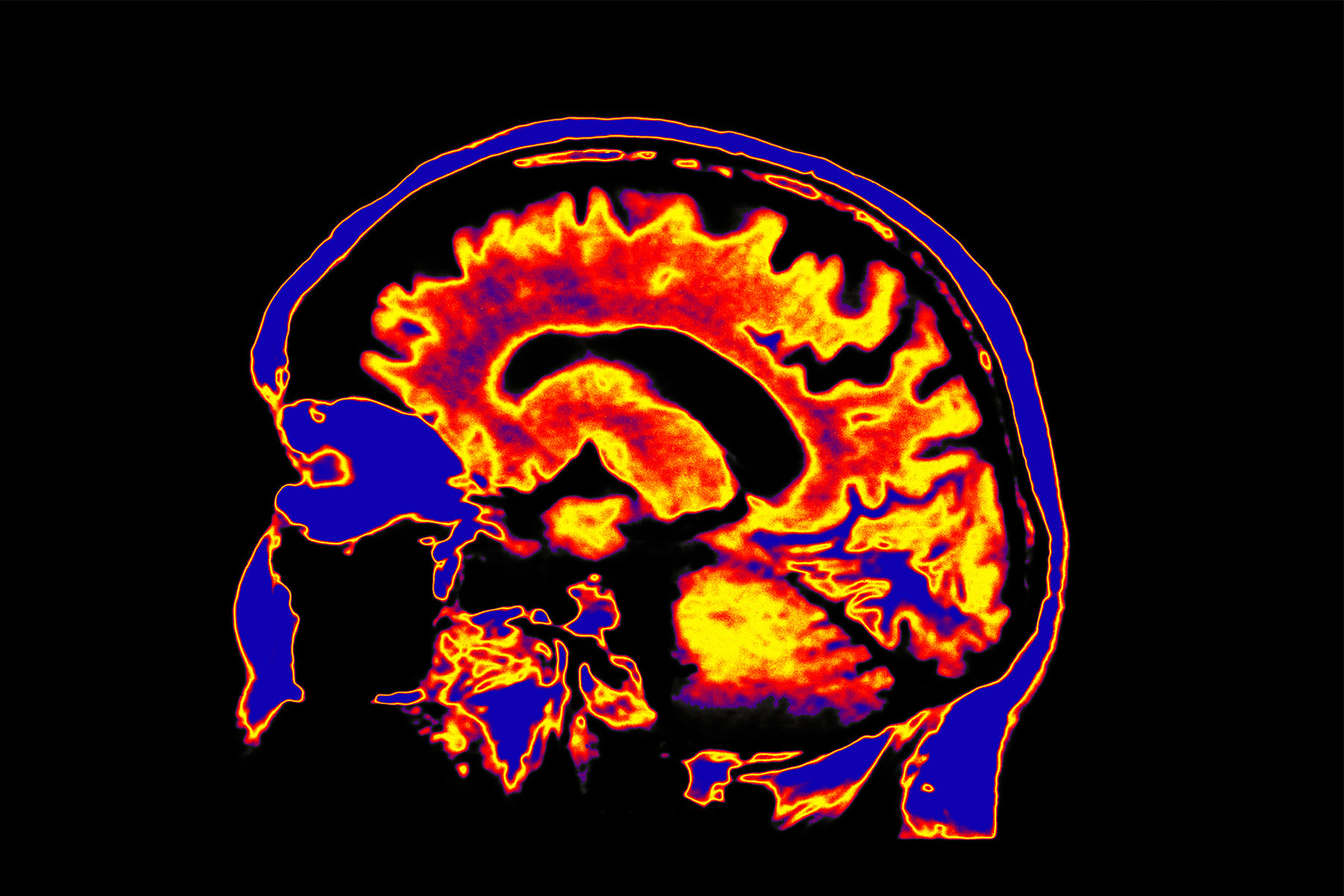 photo of medical illustration brain red orange bla