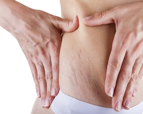 Stretch Marks: Causes, Myths, Home Remedies for Treatment and Prevention