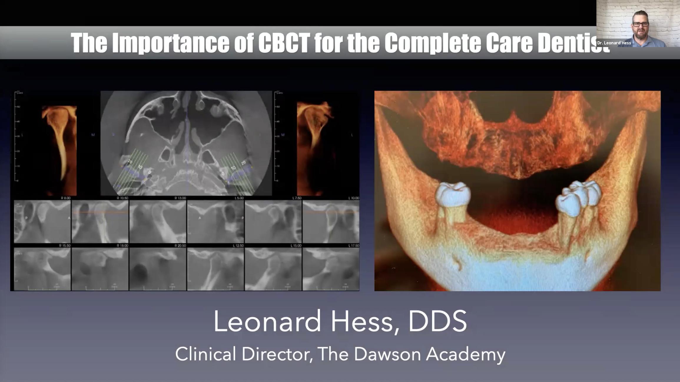 CBCT Dental CE Webinar Course Dawson Academy Blog